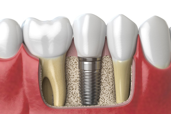 3D rendering of a dental implant next to healthy teeth at Perrinville Family Dentistry in Edmonds, WA