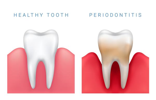 How Important is Periodontal Maintenance?